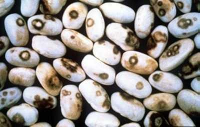"""<p><b> Anthracnose </b> on dry beans</p>      <p>(c) Courtesy EcoPort (<a href=""""http://www.ecoport.org"""">http://www.ecoport.org</a>) : J.W. Sheppard</p>"""