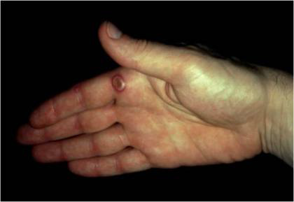Orf lesion on human hand
